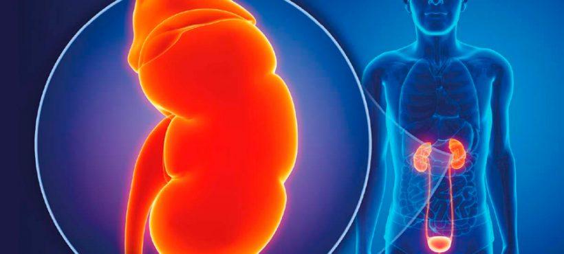 Piedras en los riñones- Remedio natural